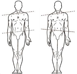 Akupunktur Odense med posturologi