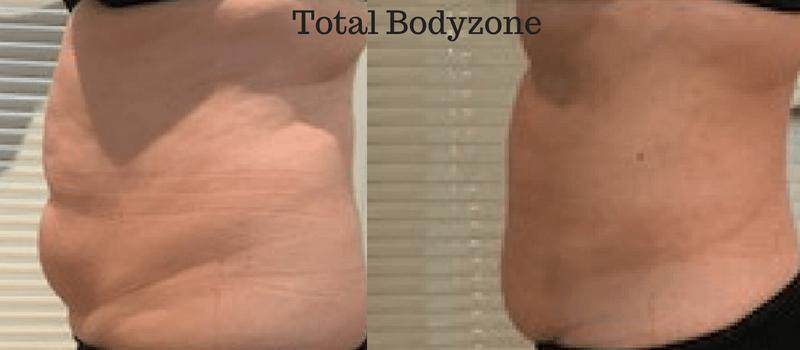 Hvordan fjerner man mavefedt?