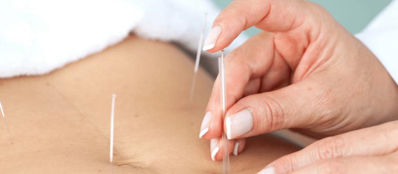 Slank med akupunktur