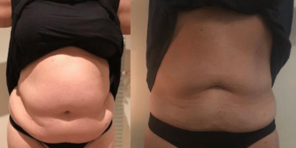 Sådan vinker du farvel til fedt i dine organer og får topmaven væk