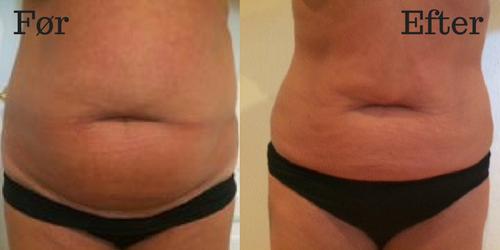 Før og efter billeder af fedtfrysning i Odense