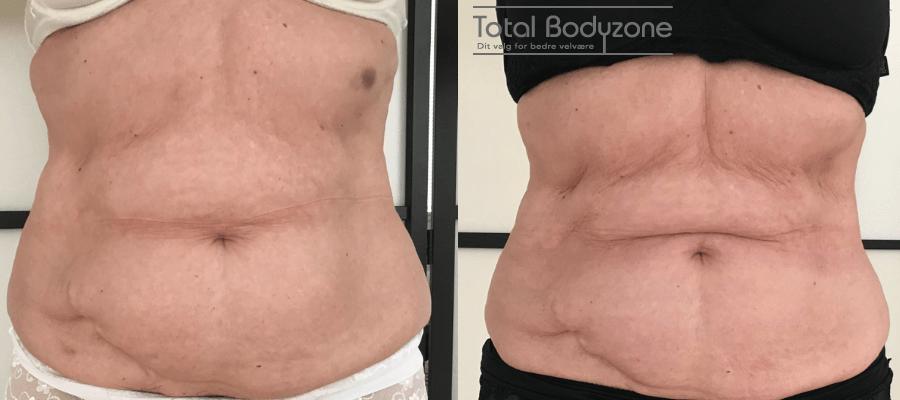 Før og efter vægttab billeder