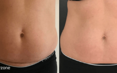 Flad mave på 4 uger med fedtfrysning