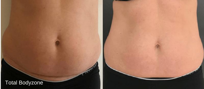 Flad mave på 4 uger med fedtfrysning i Odense på Fyn