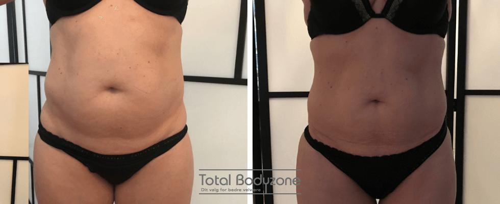 Kostvejledning online og i Odense - Gevind din figur og skræl centimeter af sidebenene